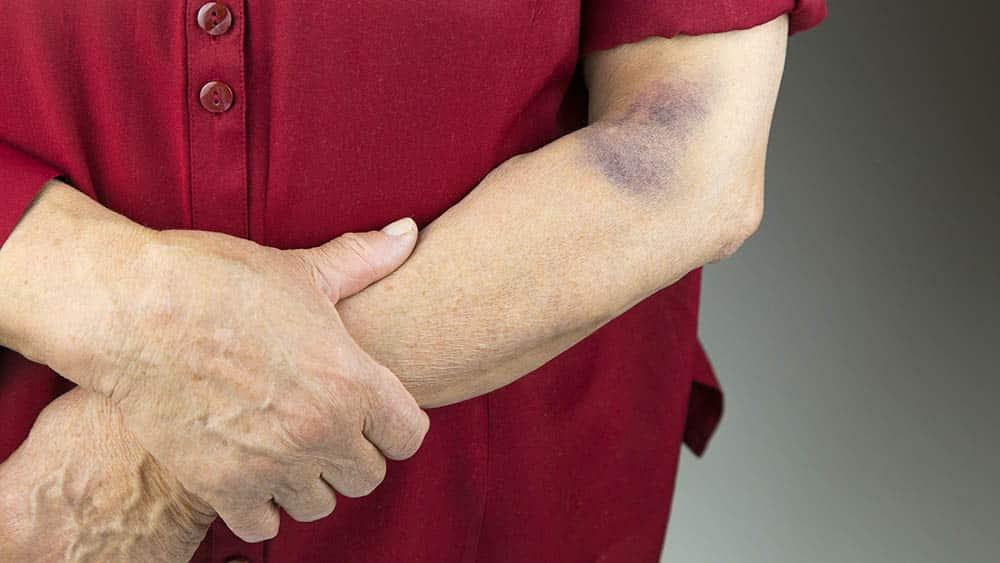 braço de uma mulher com mancha roxa típica dos sintomas de púrpura.