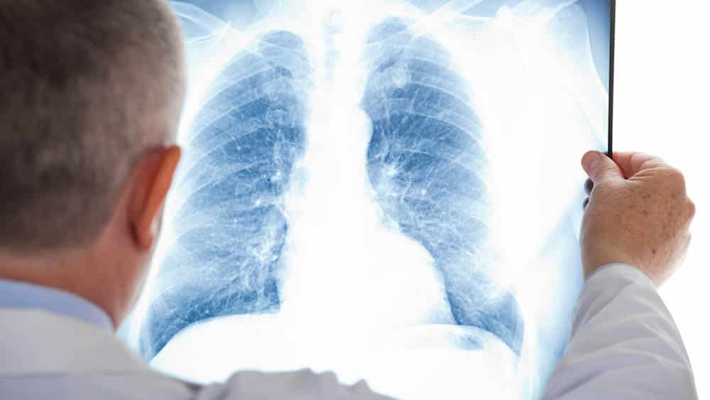 Médico analisando exame de raio x dos pulmões.