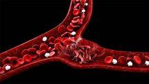 Ilustração digital de artérias com hemácias em forma de foice, características da anemia falciforme.