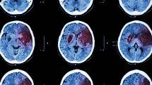 Imagens de tomografia com regiões de um cérebro atingidas por AVC marcadas em vermelho.