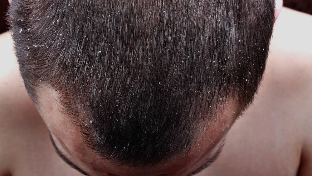 Homem inclinando a cabeça para mostrar descamação provocada por caspa.