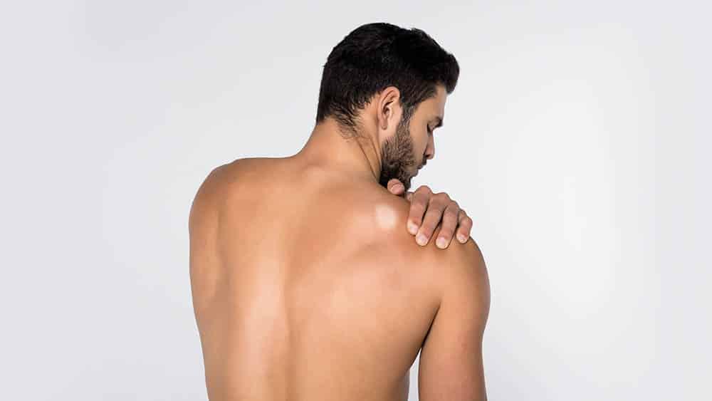 Homem de costas com uma mancha esbranquiçada característica da hanseníase próxima ao ombro.