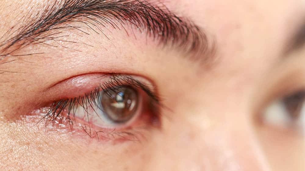 Close de olho de uma mulher afetado por um abscesso, sintoma típico de terçol e calázio.