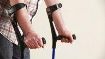 Close nos braços de homem com muletas, acessório frequentemente necessário para pacientes de poliomielite.