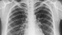 Radiografia de pulmão, umdos exames usados para diagnosticar pneumonia.
