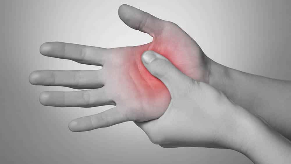 Mão de uma mulher pressionando com o polegar a palma da mão, área afetada pela síndrome do túnel do carpo.