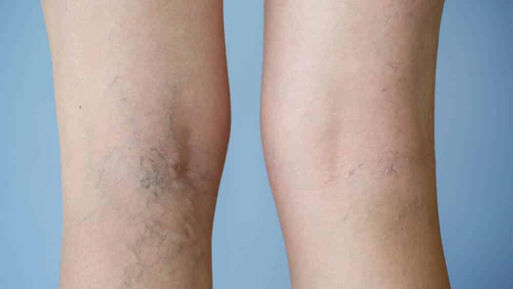 Close da parte de trás dos joelhos de uma mulher com varizes.