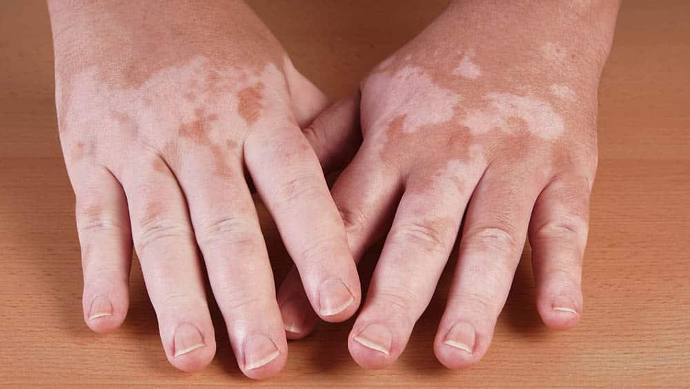 Close de mãos de um paciente de vitiligo.