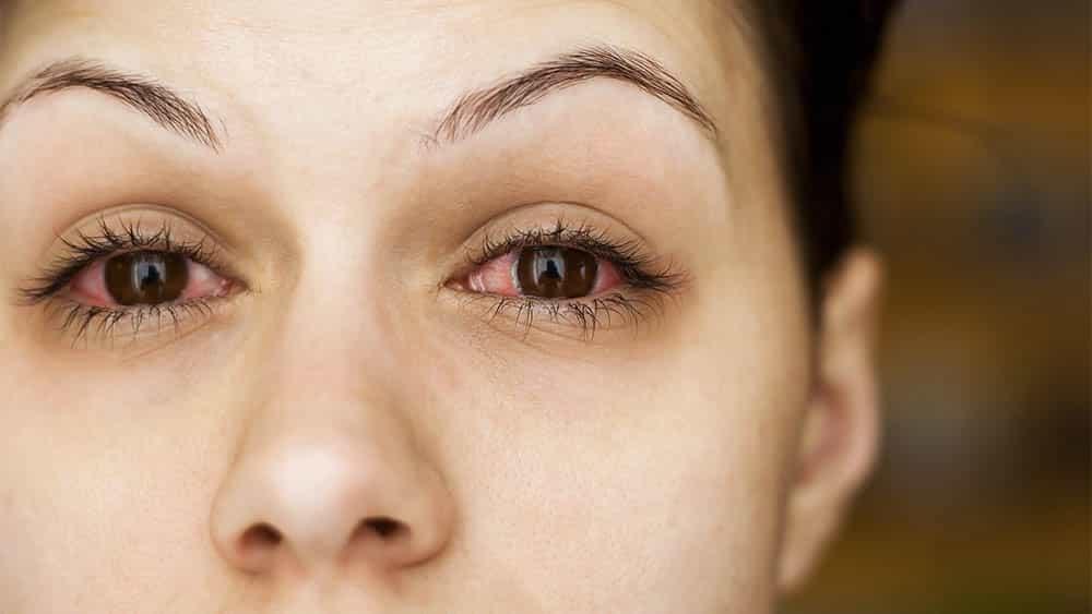 Close em dois olhos vermelhos de uma mulher com conjuntivite.