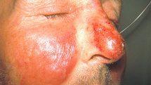 Close na região do nariz e das bochechas de um homem atingidas por erisipela, caracterizada por manchas vermelhas dolorosas.