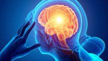 Ilustração digital de mulher com mão na cabeça aparentando dor e cérebro destacado em raio x.