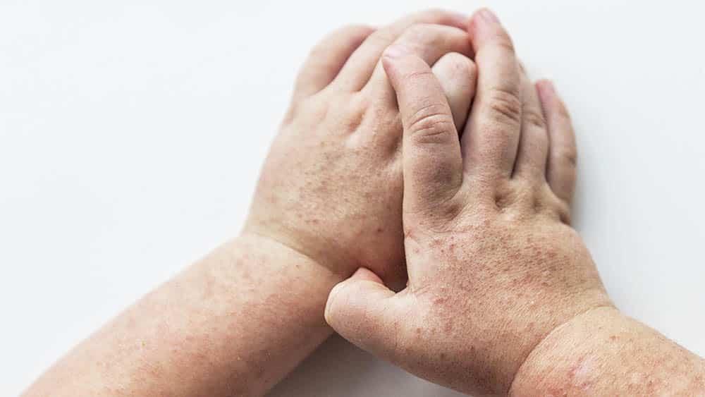 mãos e pés doem pós-parto