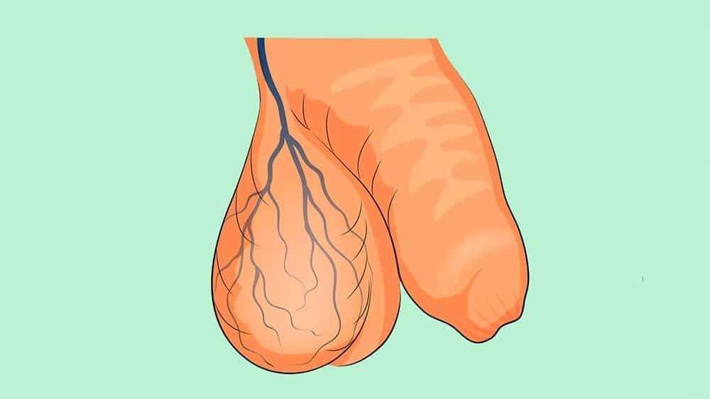 Ilustração com veias azuis dilatadas em um testículo.