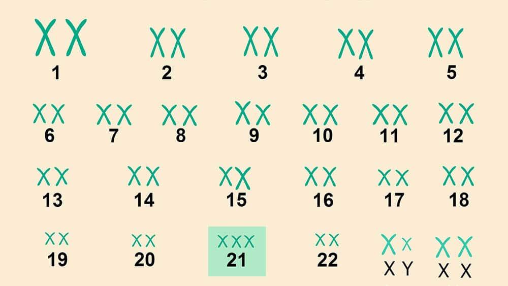Cariótipo com trissomia do cromossomo 21, característica da síndrome de Down.