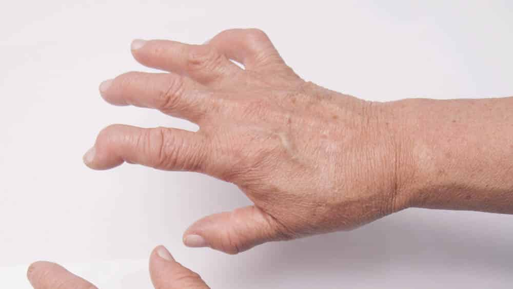 Mão direita de mulher mais velha com indicador deformado por artrose.
