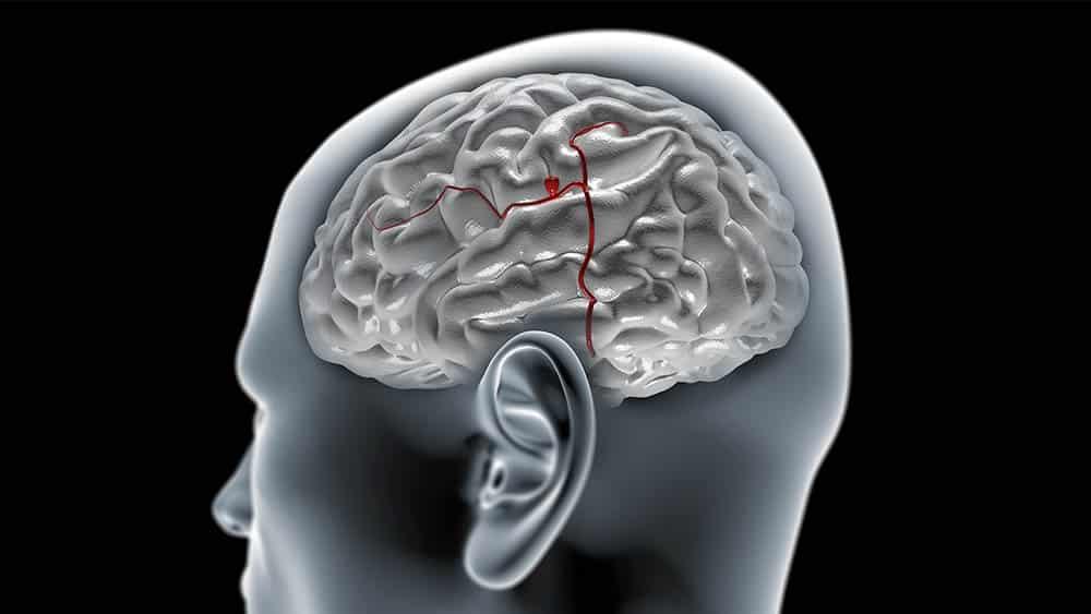 Ilustração de um cérebro com aneurisma