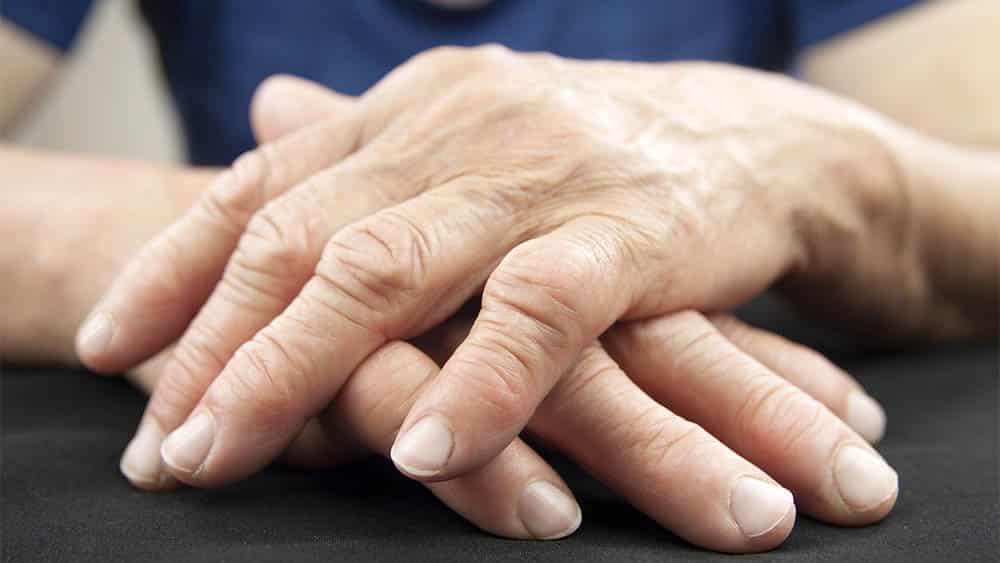 Artrite reumatoide | Drauzio Varella - Drauzio Varella