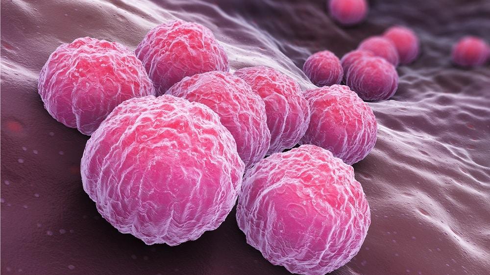 caisa uretrite da chlamydia look