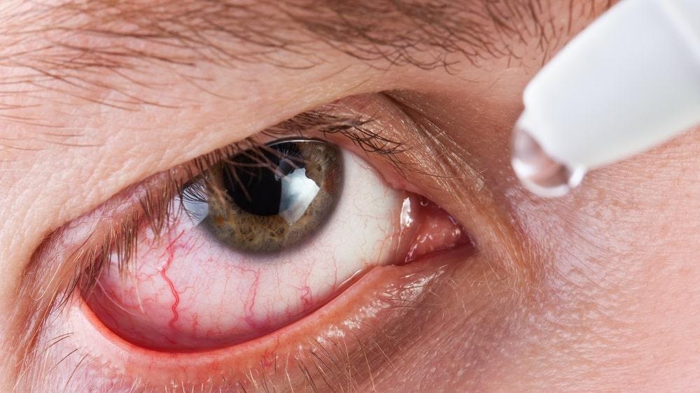 Tratamento com lágrimas artificiais para olho seco
