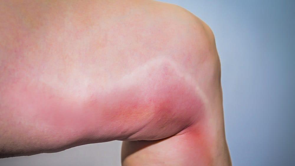 Perna avermelhada devido à trombose venosa profunda