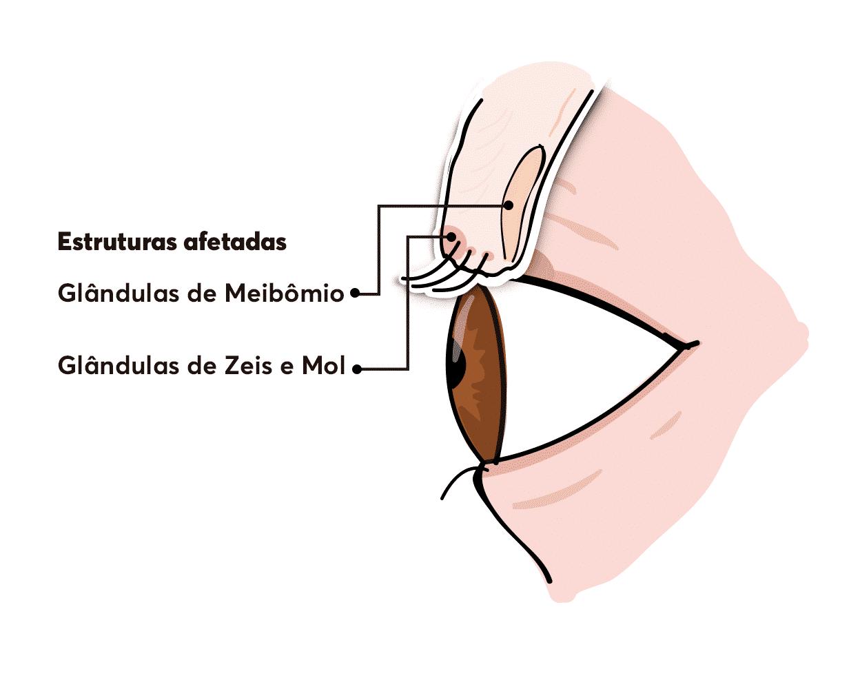 Diferença entre terçol e calázio se dá pelas glândulas afetadas.
