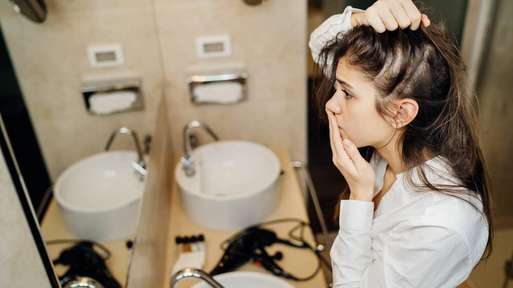 Tratamento da alopecia areata não é obrigatório, porque não previne recidivas, mas é recomendado para evitar distúrbios psicológicos.