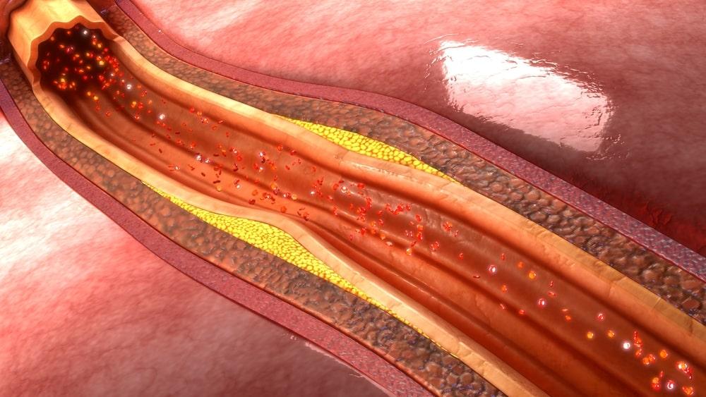 desenho de artéria com placa de mau colesterol
