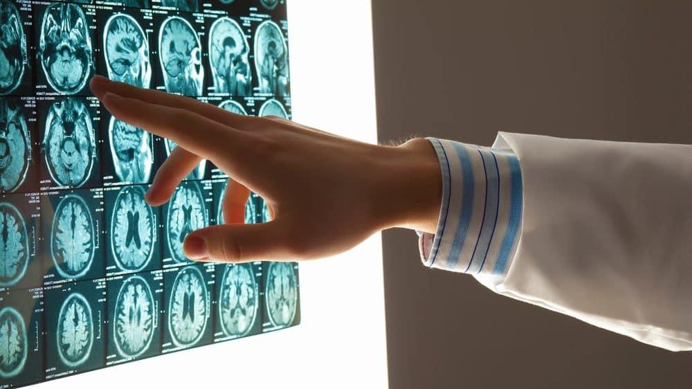 close de mão de médico apontando para tomografia de cérebro. estudo mostra relação entre memória e imaginação