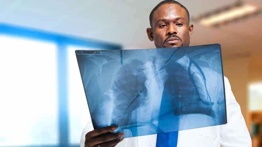 médio examina radiografia. Radiação de exames de imagem é baixa