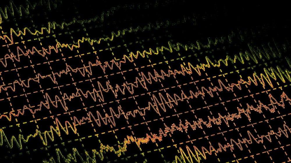 ondas cerebrais em monitor. morte cerebral obedece a critérios específicos