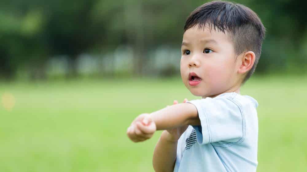 menino coça o braço após picada de inseto. epidemias provocadas por mosquitos são comuns