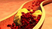 Triglicérides e doença das coronárias | Artigo
