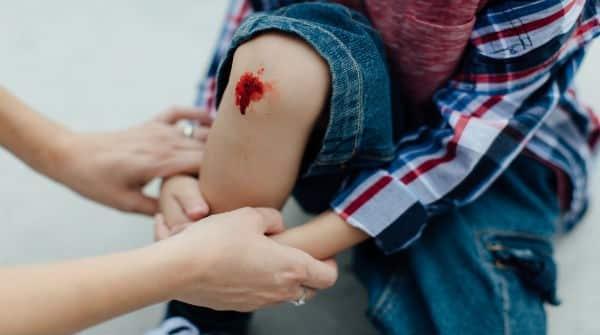 Resultado de imagem para pessoa machucada