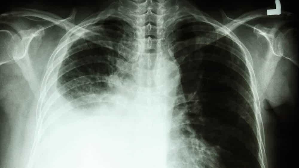 Raio x mostrando derrame pleural em pulmão direito.