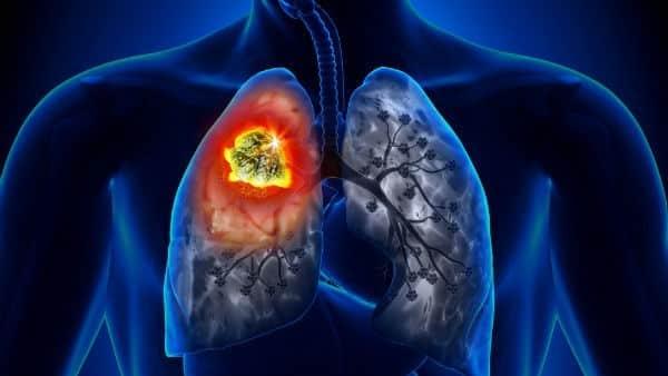 Resultado de imagem para cancer de pulmão