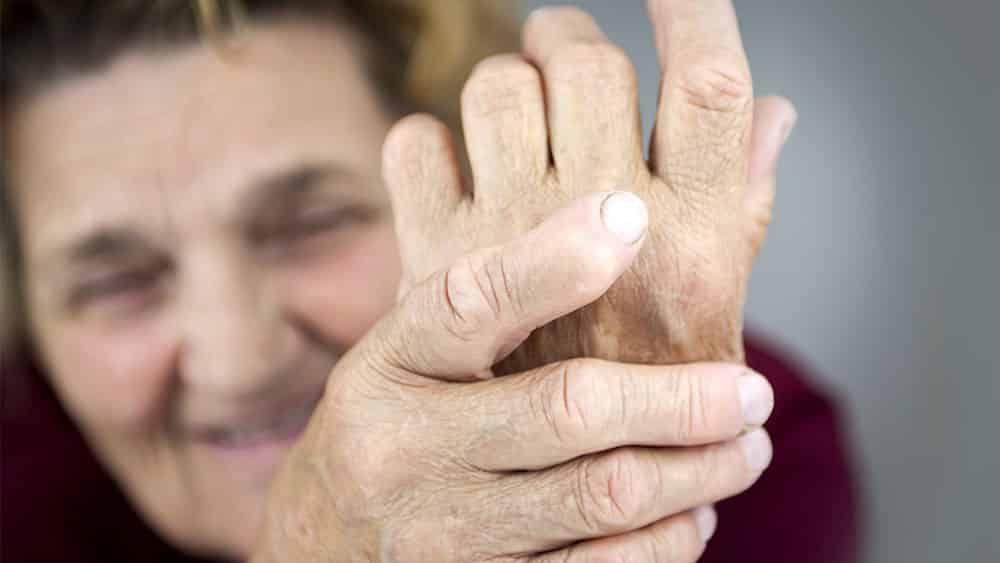 Mulher mais velha segurando sua própria mão com deformidades causadas por artrite reumatoide.