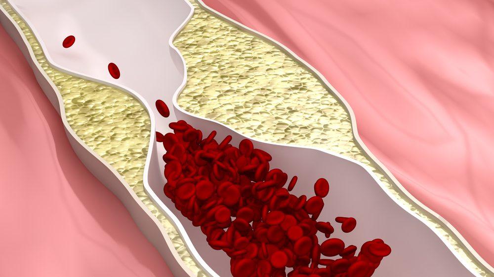 desenho ilustrando arteira bloqueada por placa de gordura típica da aterosclerose