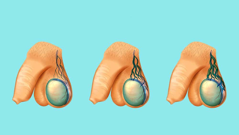 Ilustração mostrando veias dilatadas gradativamente em três testículos.
