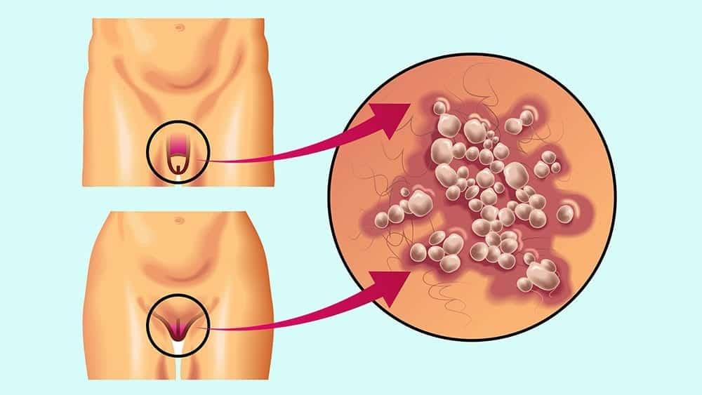 Ilustração de genital masculino e feminino com detalhe para bolhas típicas do herpes genital.