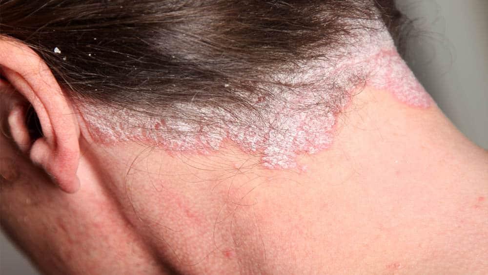 Close na região da nuca de paciente com lesões de psoríase.