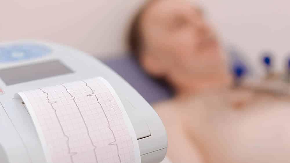 Aparelho emitindo eletrocardiograma com paciente deitado desfocado ao fundo.