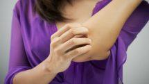 Alergia de contato | Entrevista