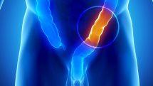 Ilustração digital de um corpo em raio x com uma região do intestino grosso em destaque.