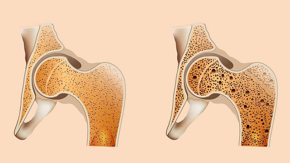 Ilustração com corte de osso de quadril normal à esquerda e um com osteoporose à direita.
