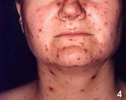 Metade inferior do rosto de uma mulher com feridas típicas de catapora.