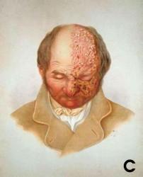 Ilustração do rosto de um homem com a metade esquerda tomada por vesículas de herpes-zóster.