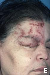 Rosto de uma mulher com feridas de herpes-zóster no lado direito da testa.