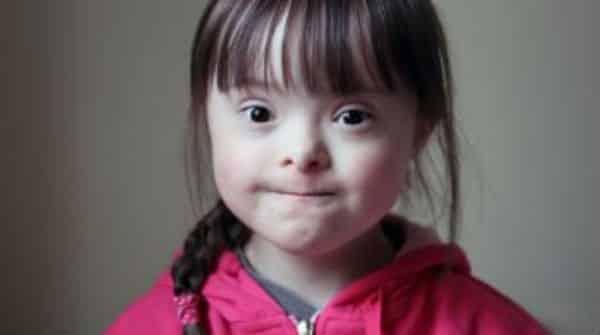 Convivência com crianças com Down | Entrevista