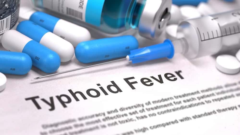 A febre tifoide é uma doença infectocontagiosa transmitida por bactéria por meio doconsumo de água e alimentos contaminados ou pelo contato direto. O tratamento inclui a administração de antibióticos.