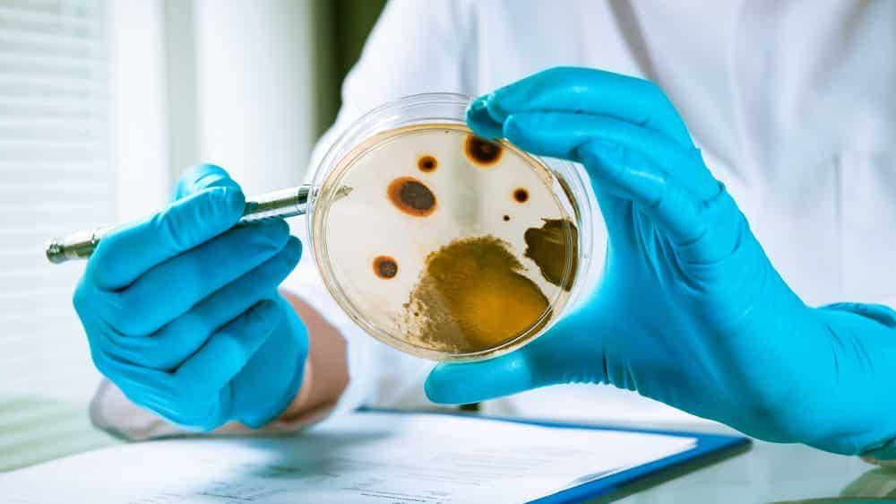 placa com microbioma humano